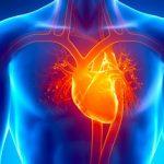 急性心筋梗塞の術後管理