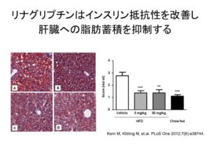 リナグリプチン 脂肪肝