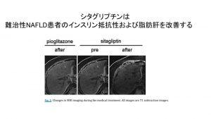 シタグリプチンの脂肪肝改善